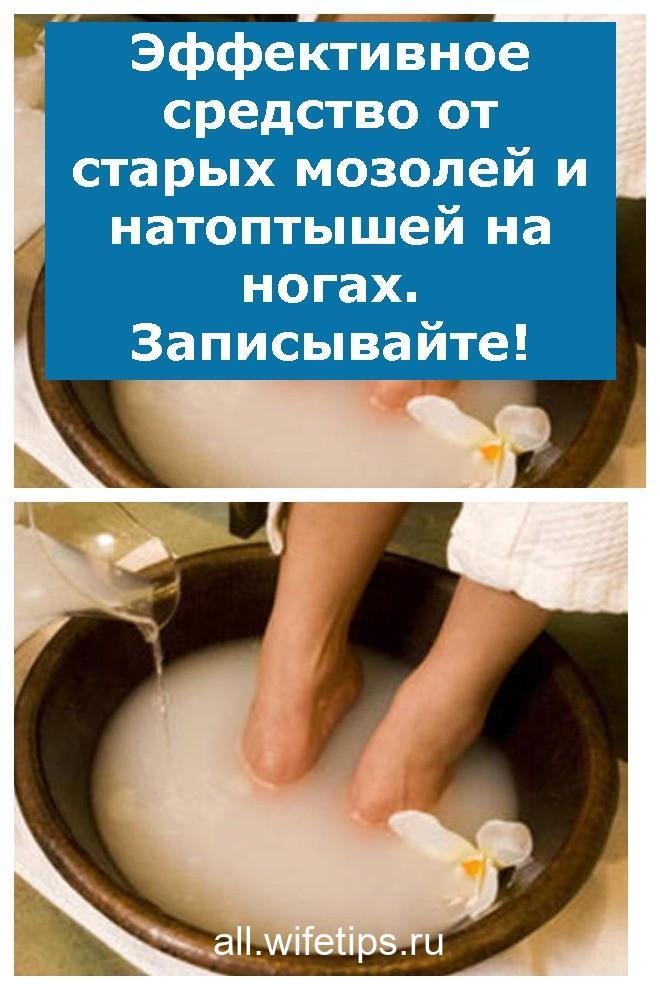 Эффективное средство от старых мозолей и натоптышей на ногах. Записывайте!